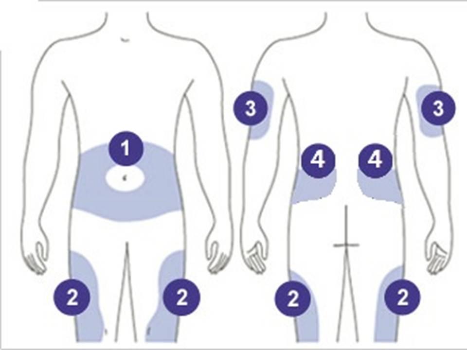 Замена инфузионной системы: пошаговая инструкция и нюансы